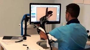 Sanita: al CORI nuovo sistema robotico per recupero mano e braccio