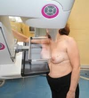 """Sanità/Umbria: Ass. Coletto, """"screening gratuito per diagnosi precoce del tumore al seno a donne tra 45 e 49 anni con familiarità"""""""